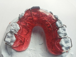 Offer for Invisalign 17